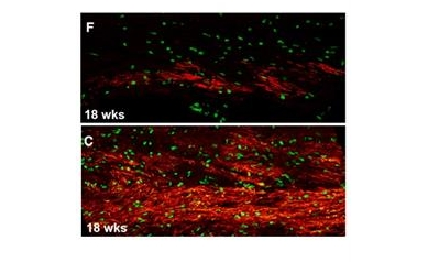 Study Confirms Central Role of Brain's Support Cells in Huntington's, Points to New Therapies