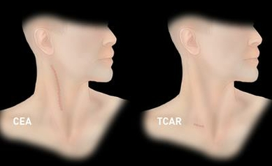 1044483444_TCAR%20vs%20CEA%20Scars_5483_1306x817