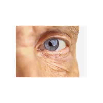 1458395356_eye%20(2)_5519_661x481