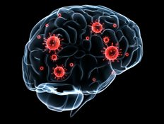 Graphic of infected brain