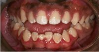 Michael's teeth before treatment