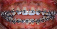 Michael's teeth with braces on