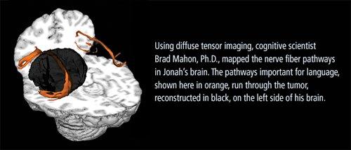 diffuse tensor imaging