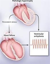 Diagram of pathologic hypertrophy leading to heart failure and ventricular arrhythmia