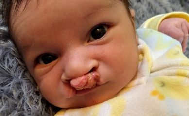 Drive By Dentistry During COVID 19 Helps Infant