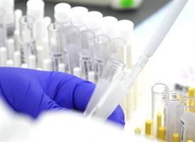 Antibody Lab Photo