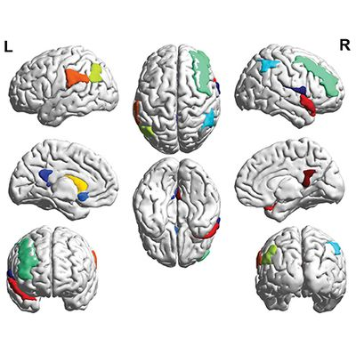 Using Machine Learning to Diagnose HIV-associated Neurocognitive Disorders