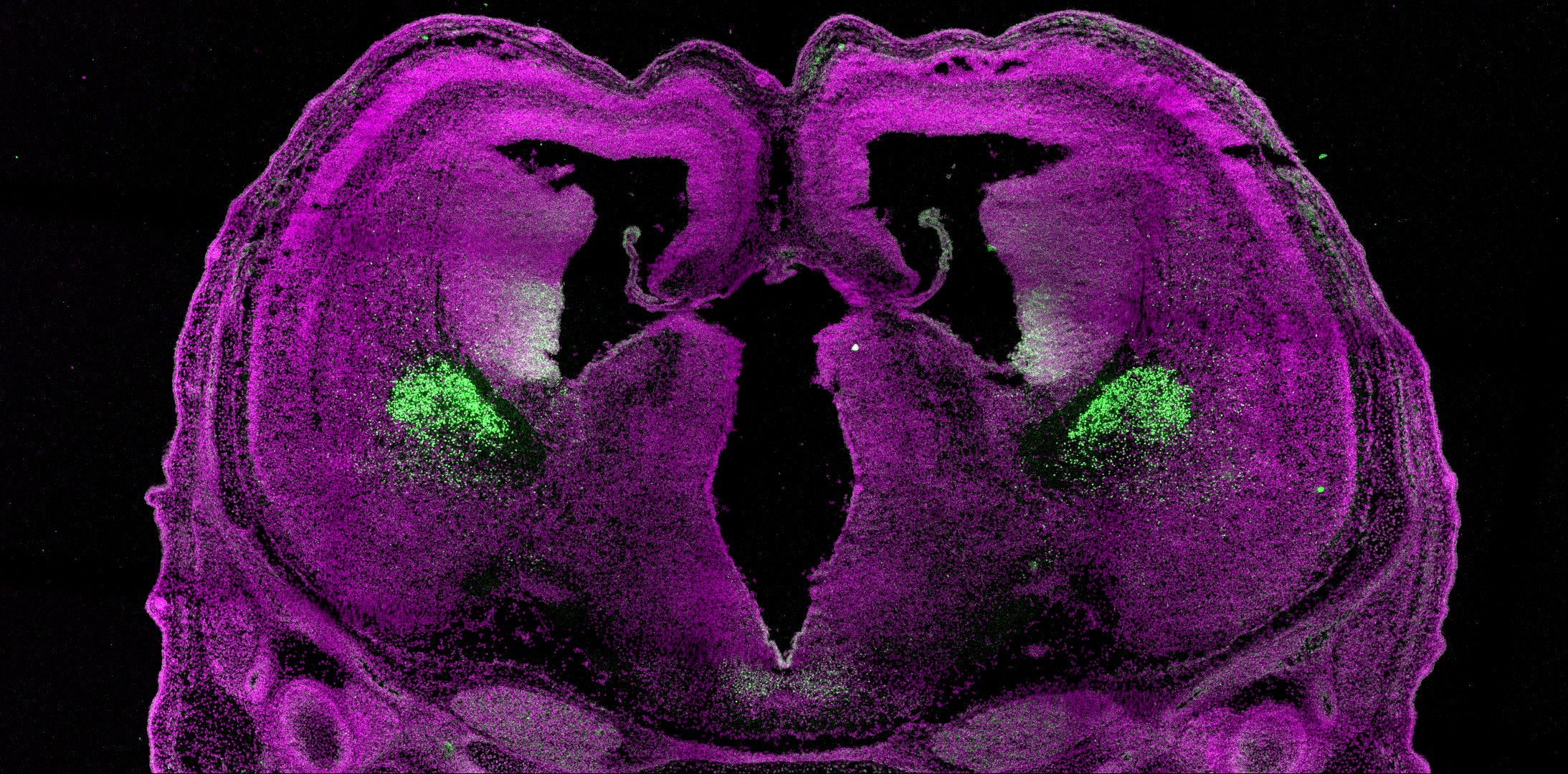 Embryonic mouse brain stained with antibodies against Nkx2.1 (green) - a critical transcription factor that defines specific brain regions important for the creation of interneurons, cells that play a critical role in establishing the excitatory and inhibitory balance of the brain later in life.