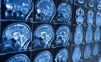 URMC to Launch New Brain Aging Research Center