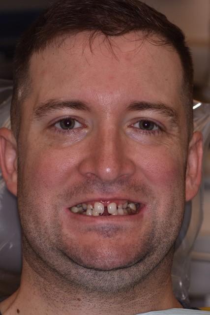 Jeff Cookinham smiling before treatment