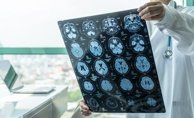 ABCD Study MRIs reveal more incidental findings in children