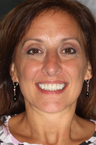 Cynthia smiling after her whitening, veneers and implants