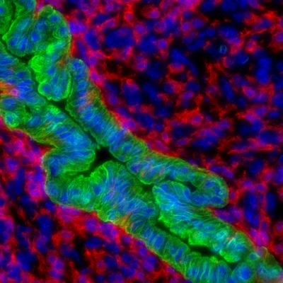 TAMs and Cancer Cells - from GUT publication Sept 2021 - Linehan