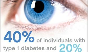 Chance of Diabetic Retinopathy