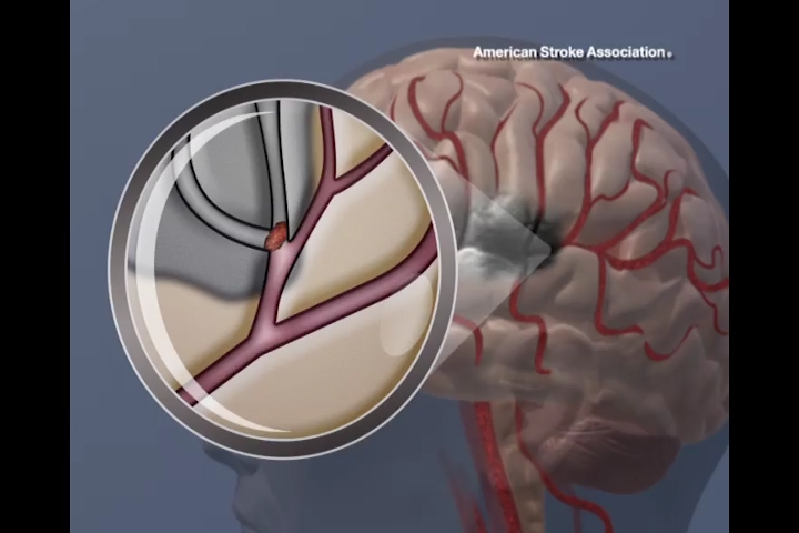Blood flow blocked in brain
