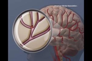 clot in the brain