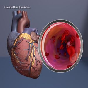Heart with artery view