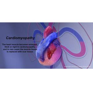Cardiomyopathy Infographic