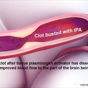 Clot busted with tPA