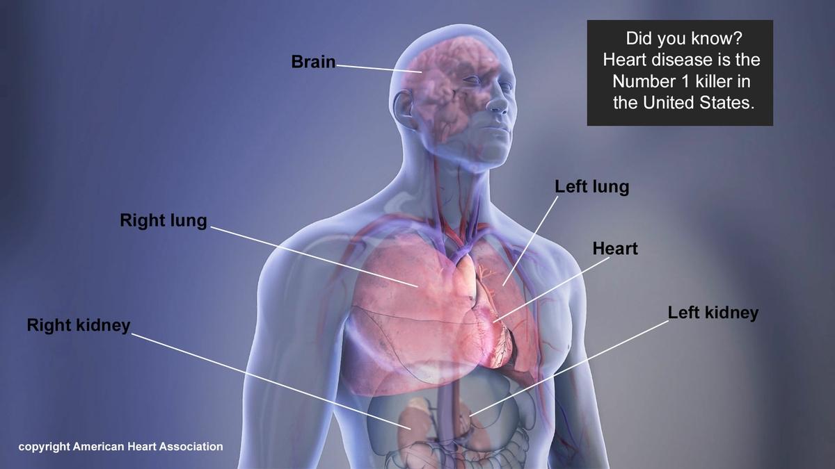 AHA/ASA Medical Graphics and Illustrations | American Heart Association