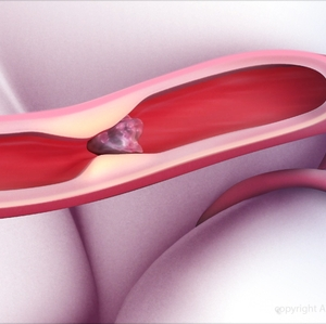 Lower dose of newer clot-buster may be appropriate for some stroke patients