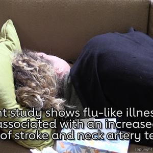 Flu flu-like illnesses linked to increased risk of stroke neck artery tears