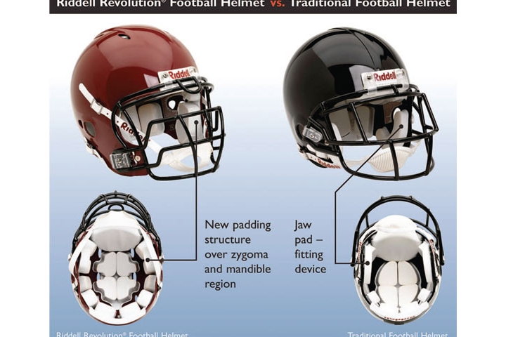 Neurosurgery Study: Research Has Shown a Reduction in the Risk of Concussion in Players Wearing Riddell Revolution Helmets When Compared to Traditionally Designed Helmets.