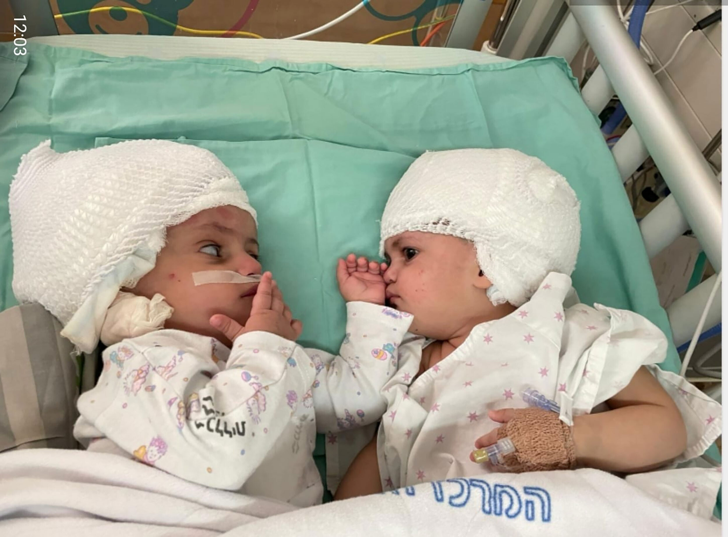Twins joined at the head are separated after 12-hour surgery in Israel