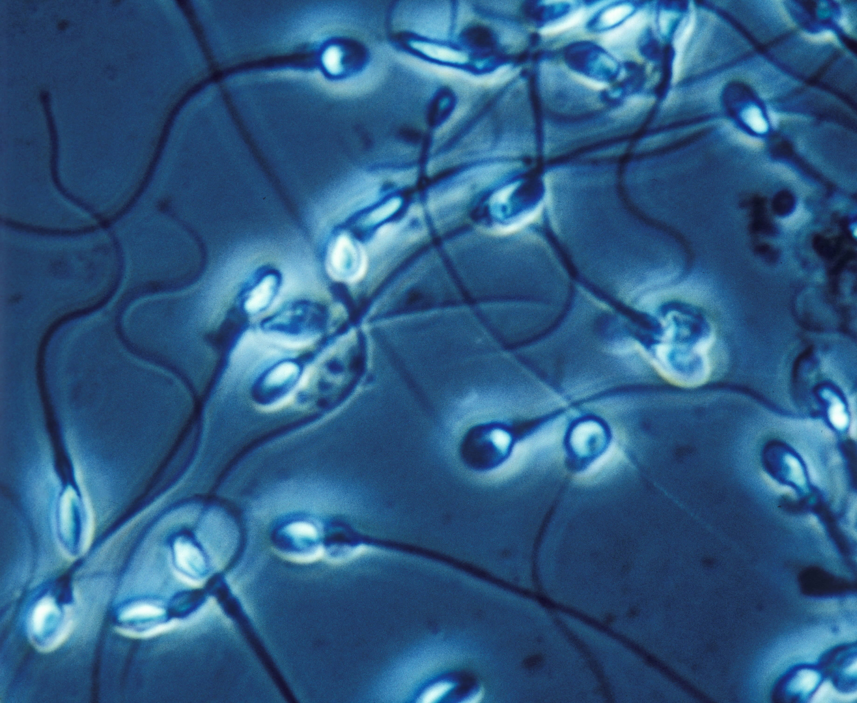 Poor quality Western diet kills sperm count and lowers male testosterone, study says