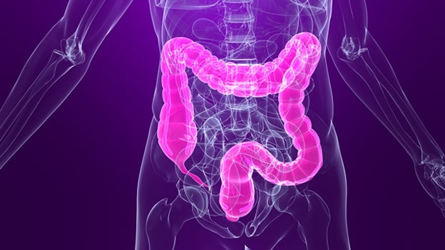 US task force proposes starting colorectal cancer screening at age 45