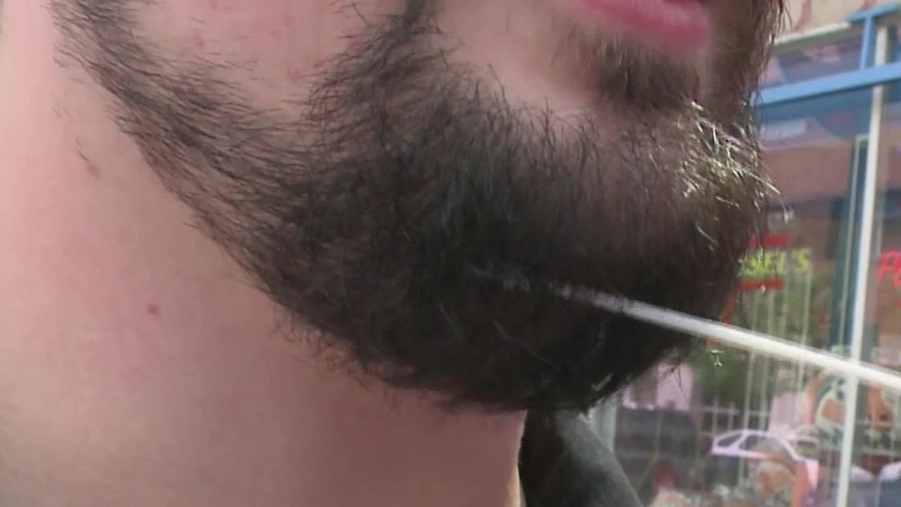 Bearded men are more attractive to women, study says, unless they're squeamish about hair-borne bugs