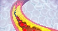 Reduce cholesterol earlier in life to prevent heart problems later, study says
