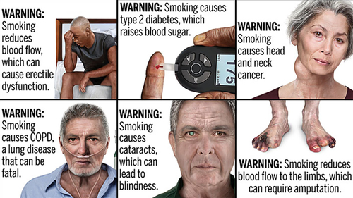 Image for Cigarette packs and ads to include graphic warnings starting next year, FDA says