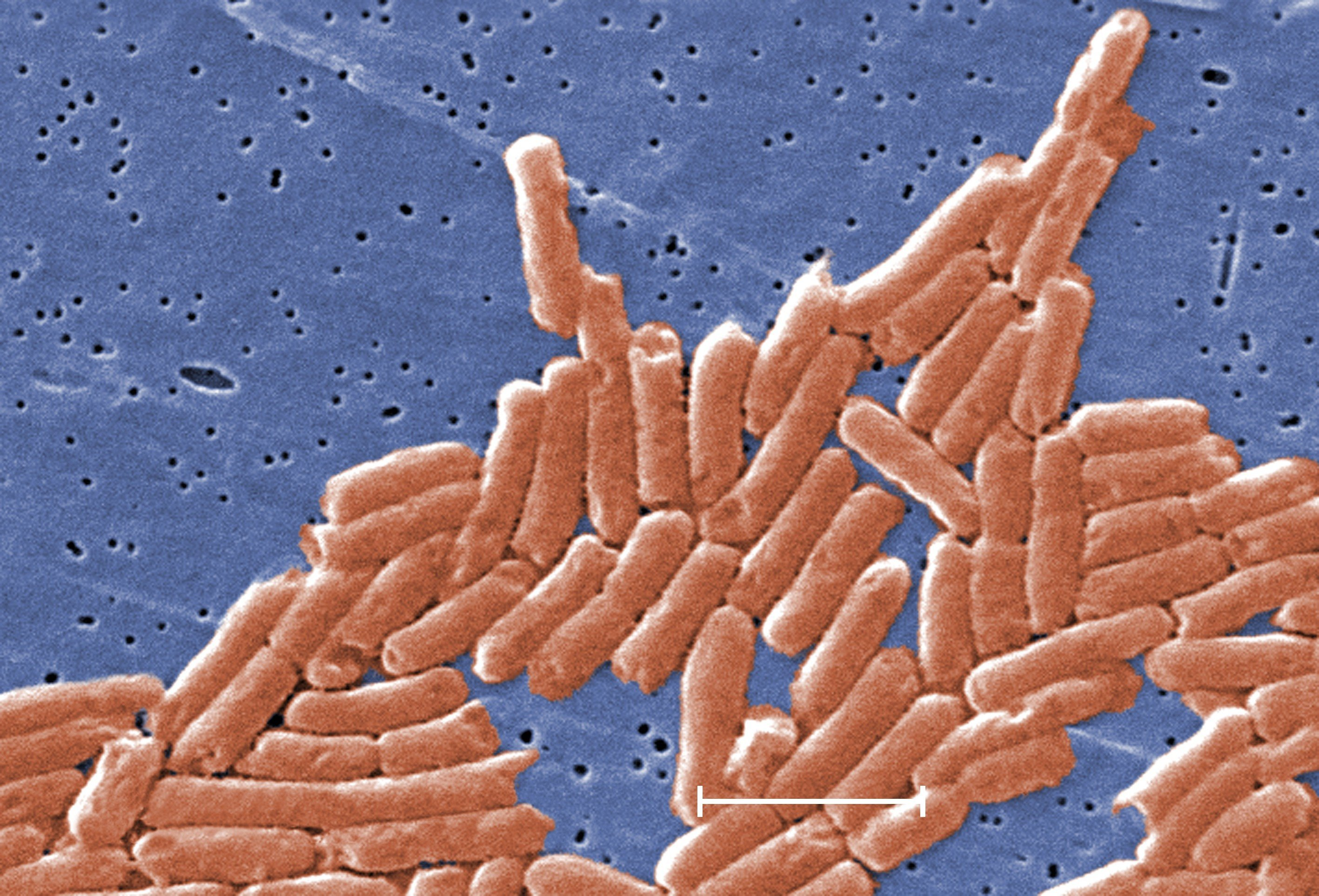 CDC sounds alarm over deadly drug-resistant salmonella