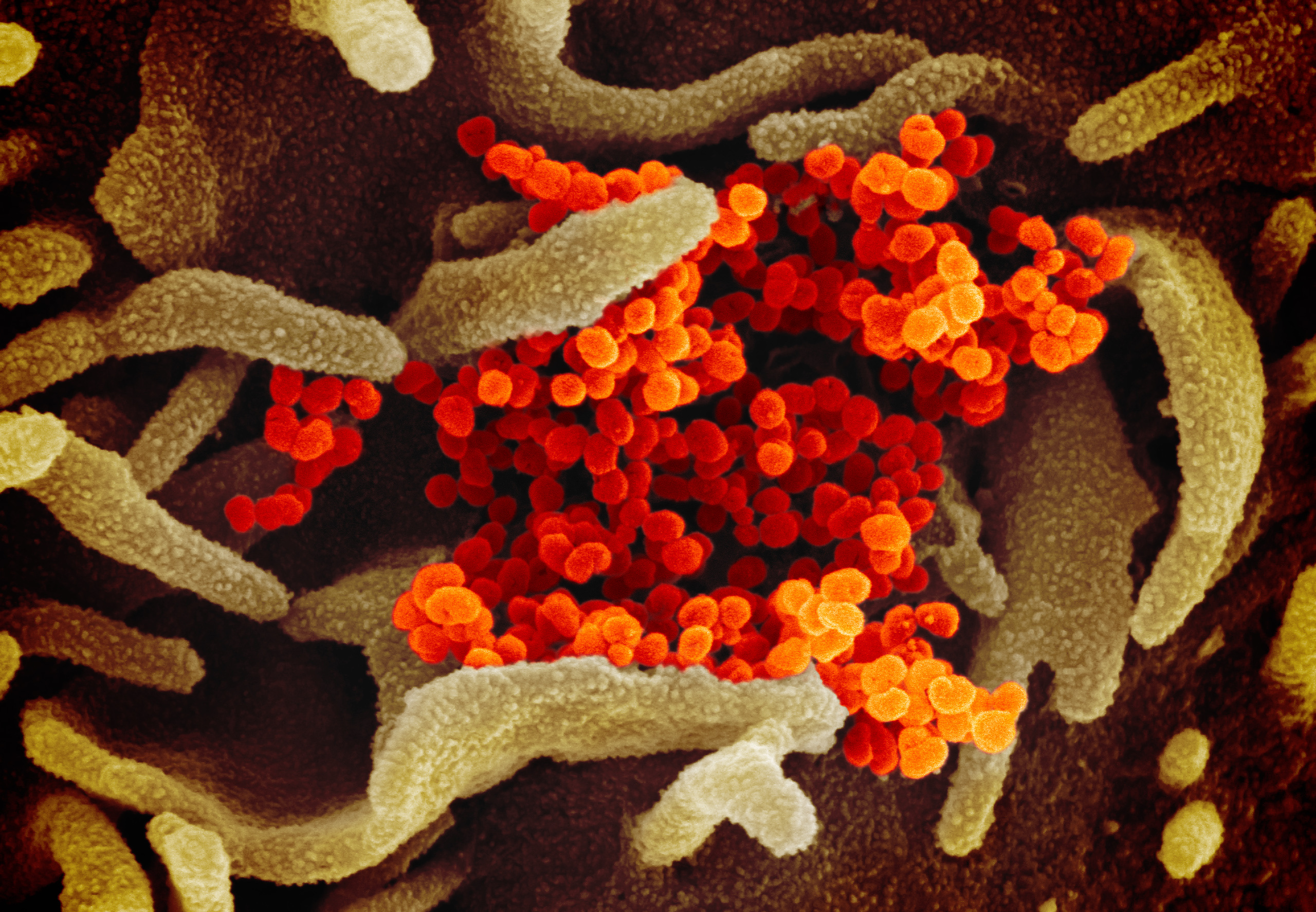FDA authorizes first coronavirus antibody test