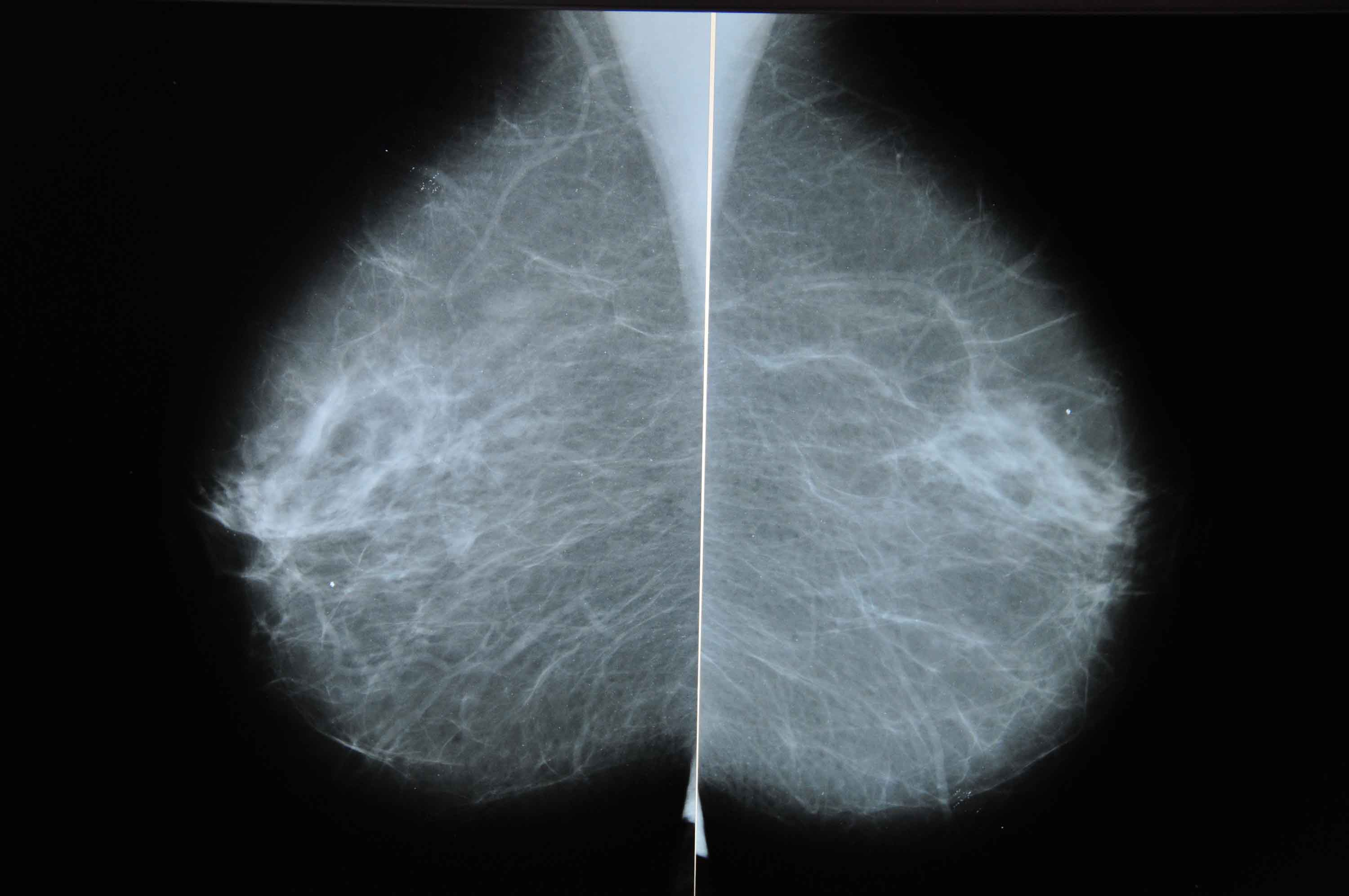 Mammograms pick up swelling due to Covid-19 vaccine, causing unnecessary fear, radiologists say