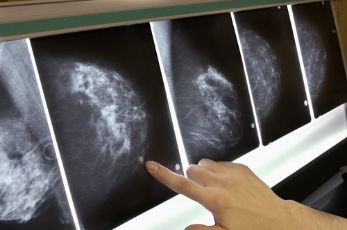 Image for Morning people may have a lower risk of breast cancer, says study