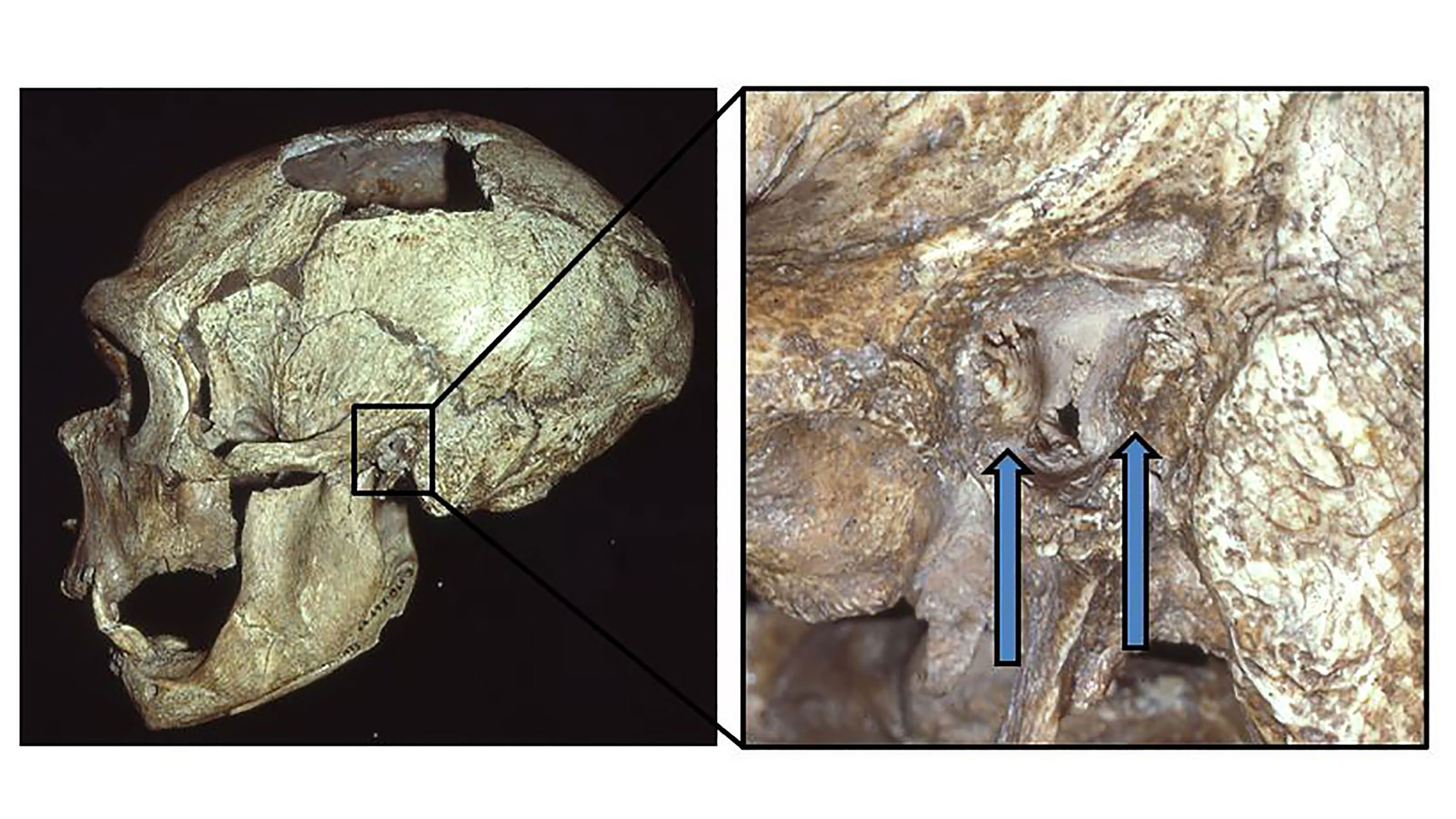 Neanderthals got 'surfer's ear' too, study says