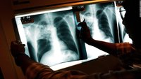 New treatment approved for drug-resistant tuberculosis