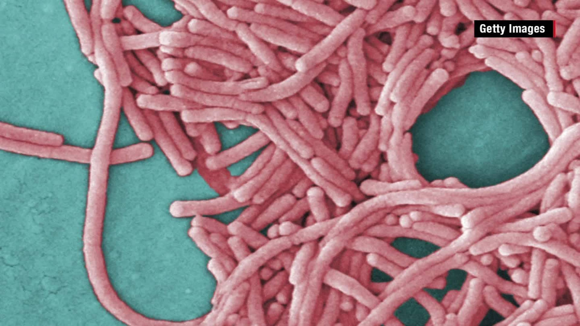 A third person has died after a Legionnaires' disease outbreak in North Carolina