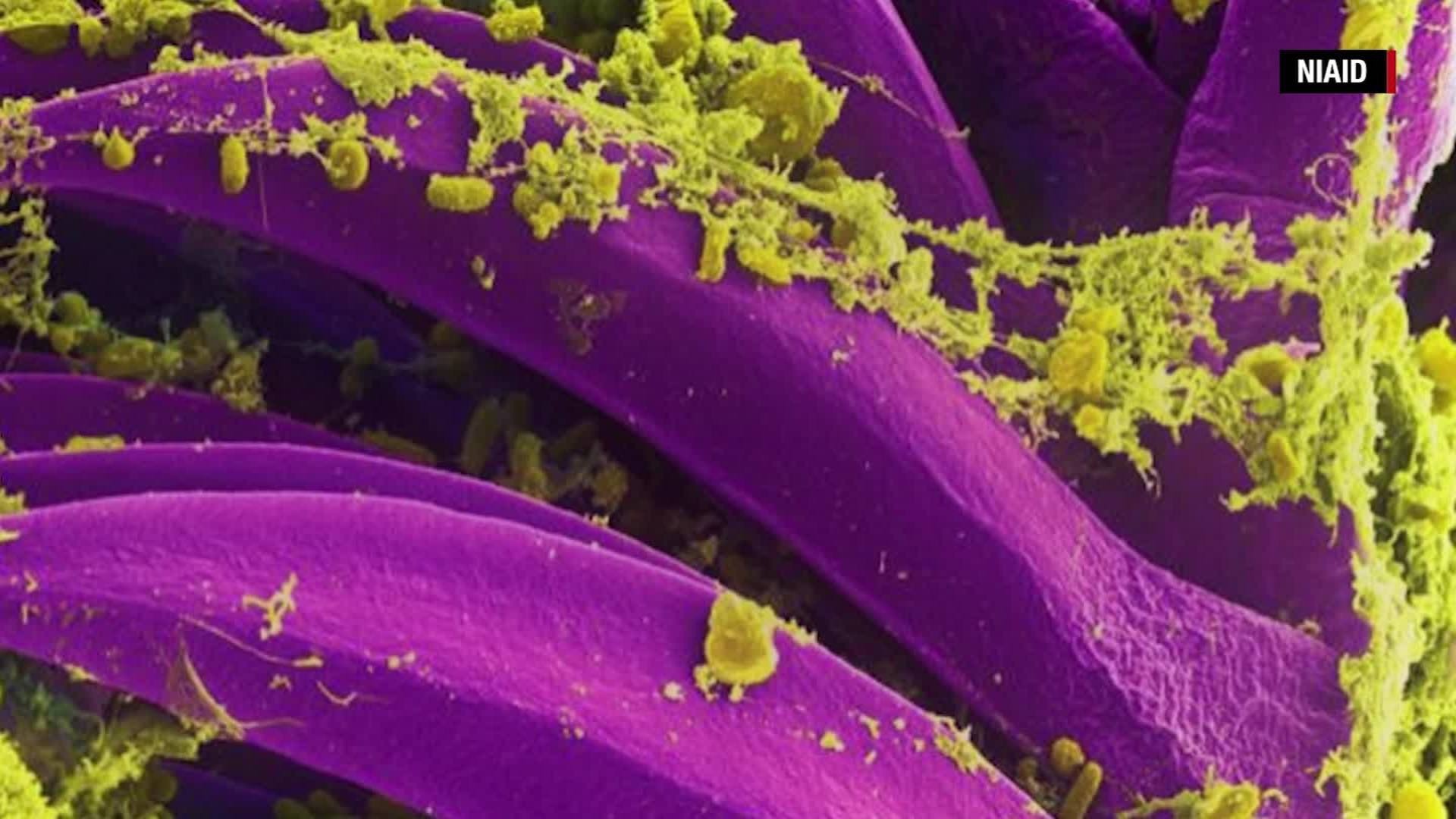 A New Mexico man has died from the state's second reported case of plague this year