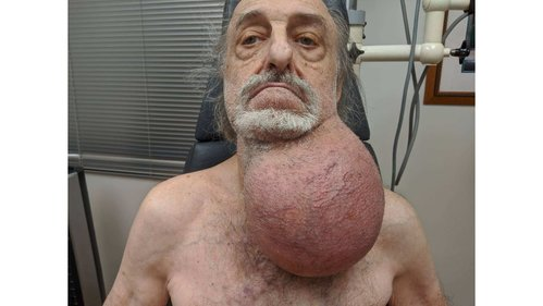Image for Doctors removed a tumor the size of a soccer ball from a man's neck