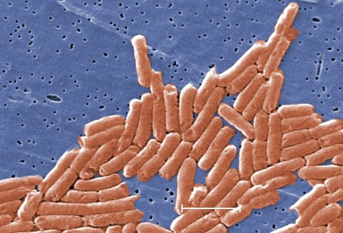 Image for Salmonella linked to ground beef