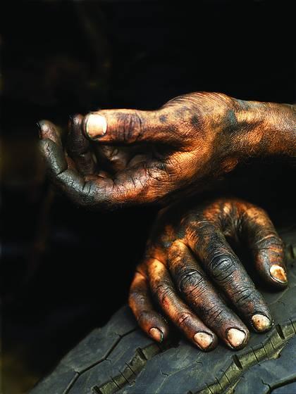 Trucker s hands