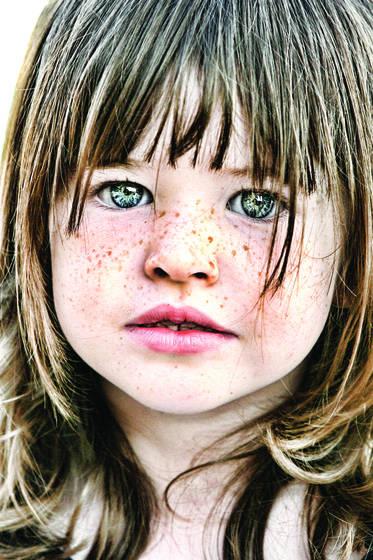 Charlie freckles