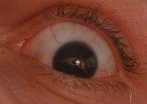 Eli Barzilay | Eye?