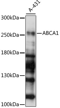 ABCA1 Polyclonal Antibody Western Blot, ABCA1 Antibody Western Blot, ABCA1 Western Blot, ABCA1 Rabbit pAb Western Blot