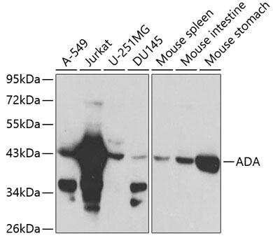 ADA Polyclonal Antibody Western Blot, ADA Antibody Western Blot, ADA Western Blot, ADA Rabbit pAb Western Blot