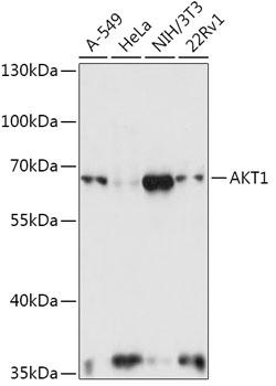 AKT1 Polyclonal Antibody Western Blot, AKT1 Antibody Western Blot, AKT1 Western Blot, AKT1 Rabbit pAb Western Blot