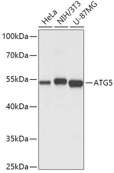 ATG5 Polyclonal Antibody Western Blot, ATG5 Antibody Western Blot, ATG5 Western Blot, ATG5 Rabbit pAb Western Blot